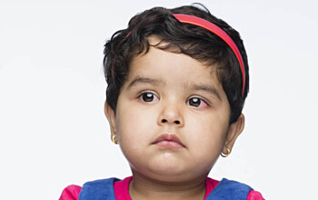 Conjunctivitis in Toddlers: Symptoms, Treatment and Prevention